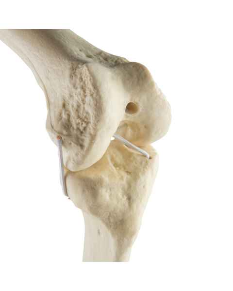 ORTHOBone Standard Knee (Right)