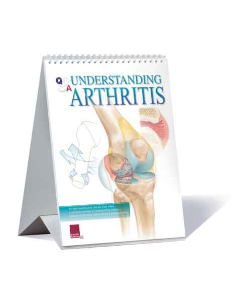 Scientific Publishing 1052F Understanding Arthritis Flip Chart
