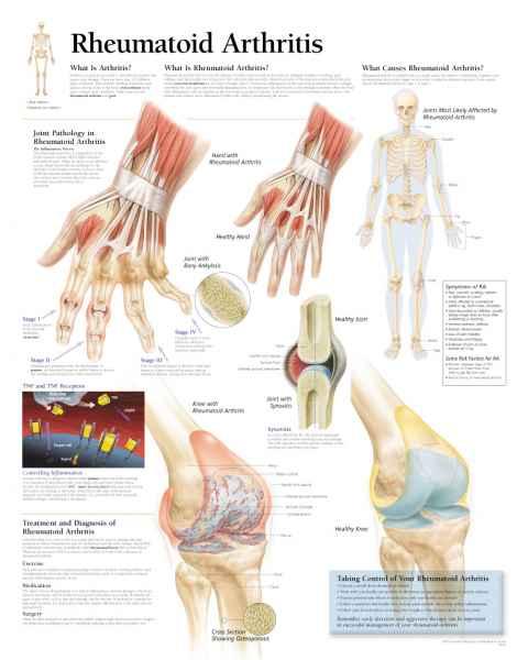 Rheumatoid Arthritis Chart