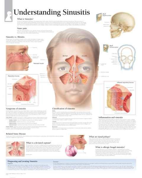 Understanding Sinusitis Chart
