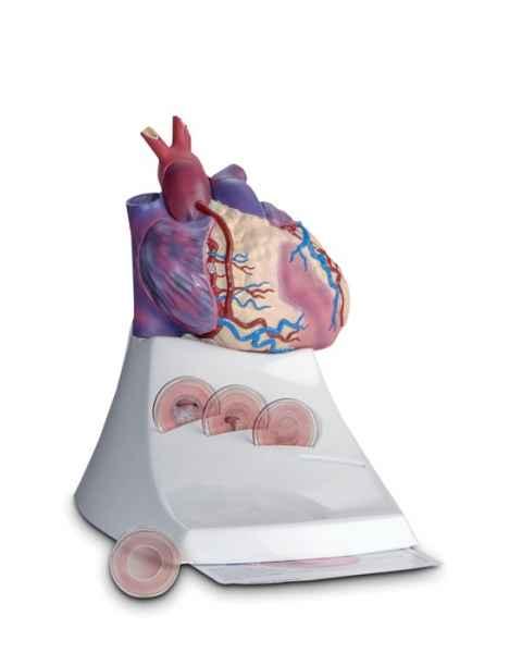 Scientific Publishing 1454M Life Size Diseased Heart Model