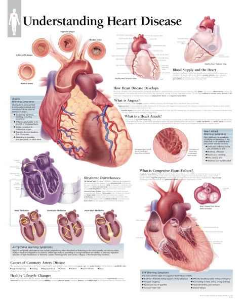 Understanding Heart Disease Chart