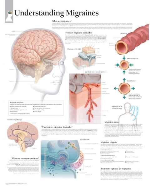 Understanding Migraines Chart