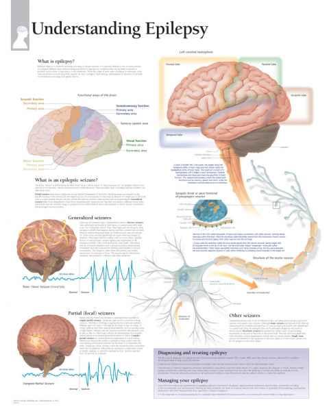 Understanding Epilepsy Chart