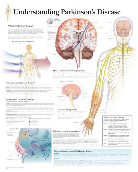 Understanding Parkinson's Disease Chart