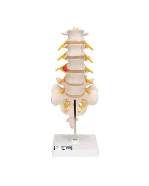 Flexible Lumbar Vertebral Column With Herniated Disc