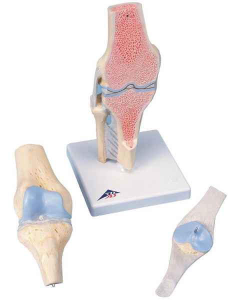 Sectional Knee Joint Model 3-Part