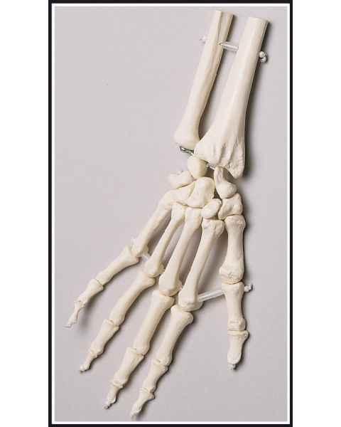 Premier Elastic-Mounted Hand Skeleton with Distal Radius & Ulna