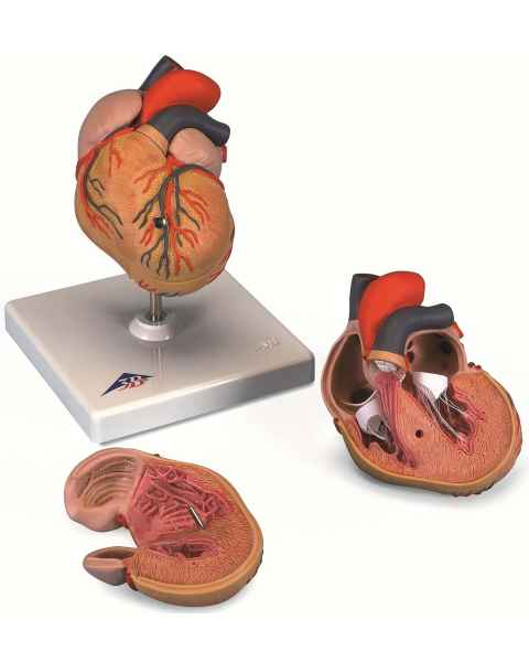 Classic Heart Model with Left Ventricular Hypertrophy (LVH) 2-Part