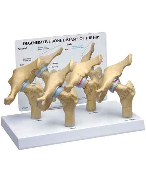 4-Stage Degenerative Bone Diseases of the Hip Model