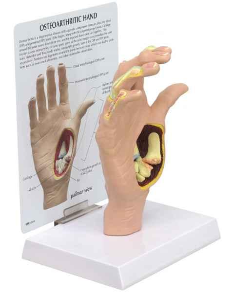 Osteoarthritis Hand Model