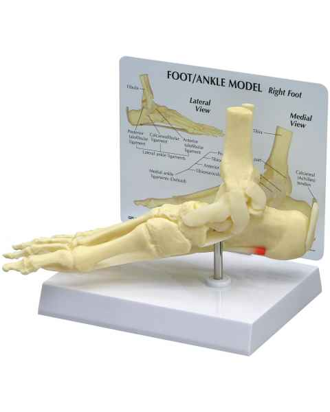 Foot and Ankle Model with Plantar Fasciitis
