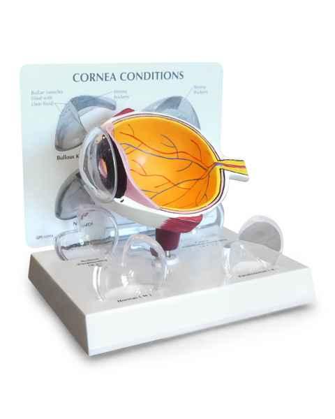Cornea Eye Cross-Section Model