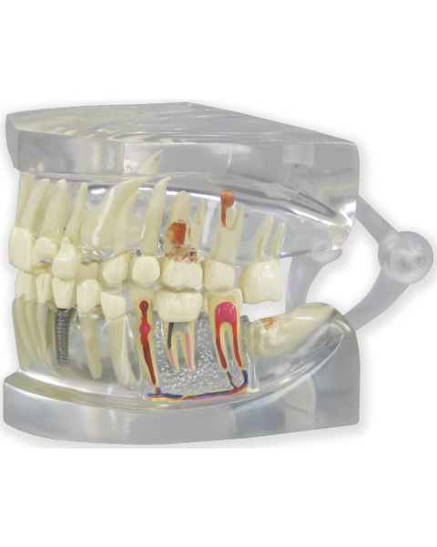 Clear Human Jaw with Teeth Model
