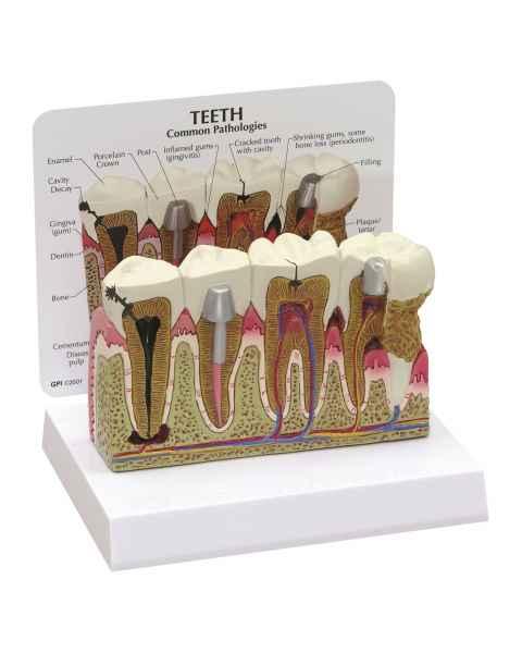 Diseased Teeth and Gums Model