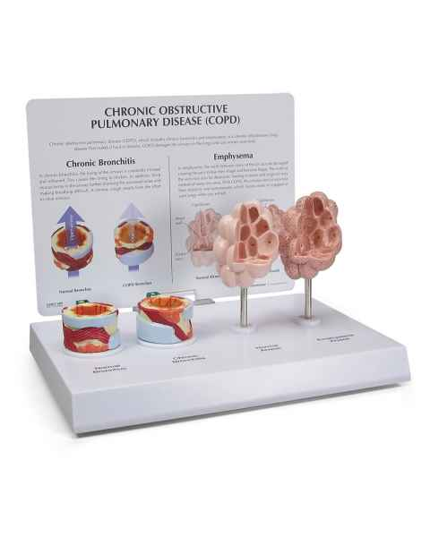 COPD Anatomical Model