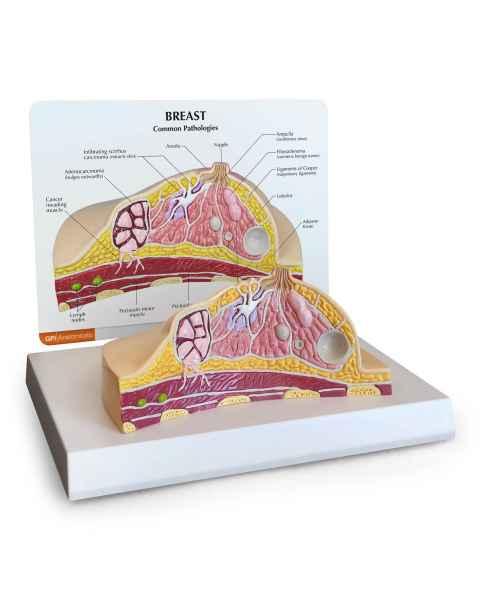 Breast Cross-Section Model