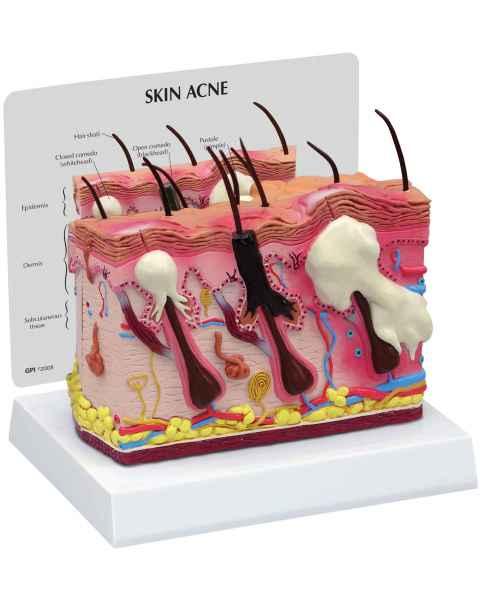 Skin Normal/Acne Model