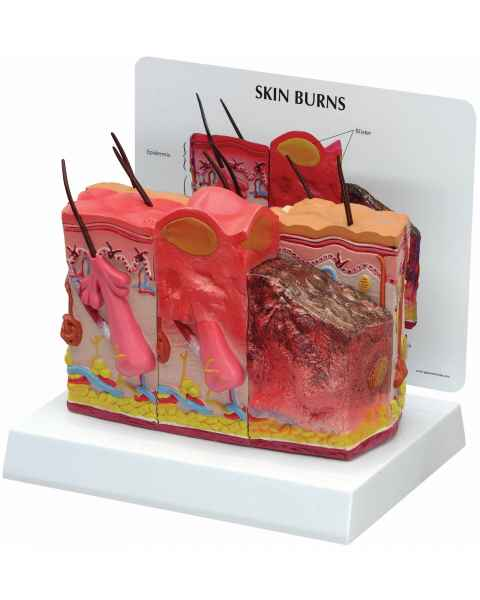 Skin with Burns Model