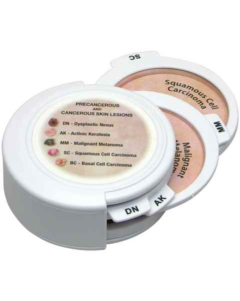 Precancerous And Cancerous Skin Lesions - Hinged Disk Set Model