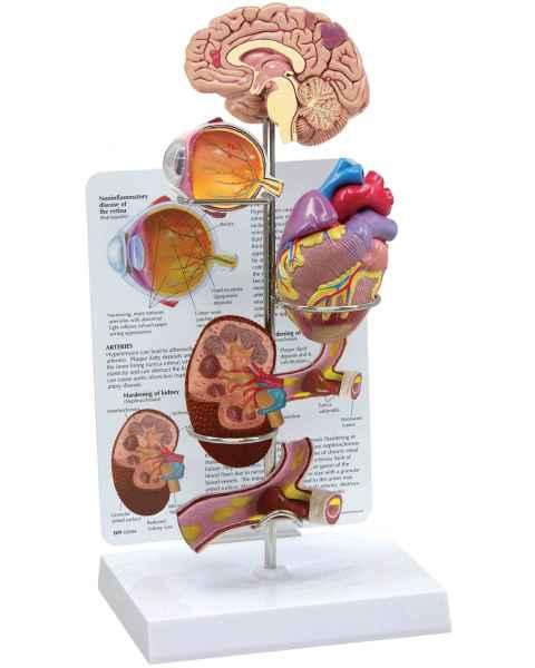 Hypertension Model Set