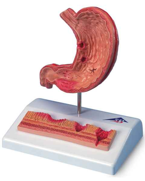 Stomach Model with Ulcers