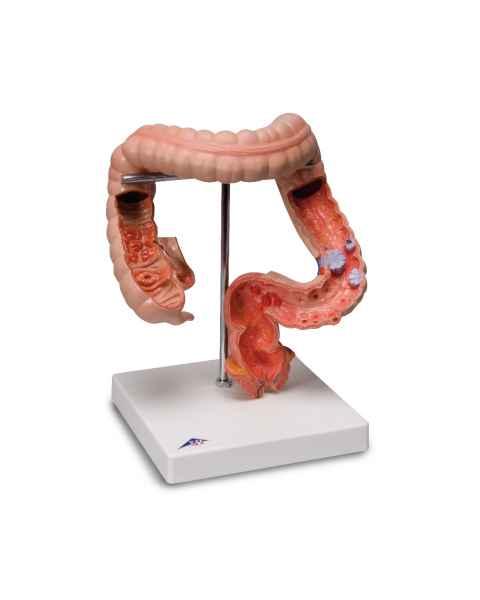 Intestinal Diseases