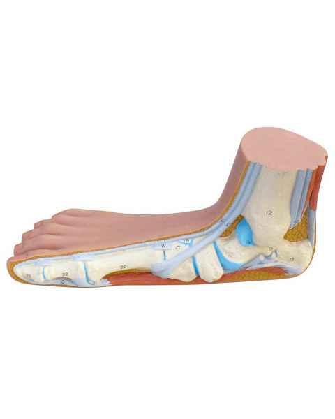 Flat Foot Model (Pes Panus)
