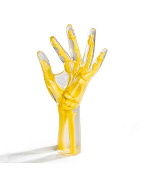 RSD Anthropomorphic Oblique Position Hand Wrist Phantom