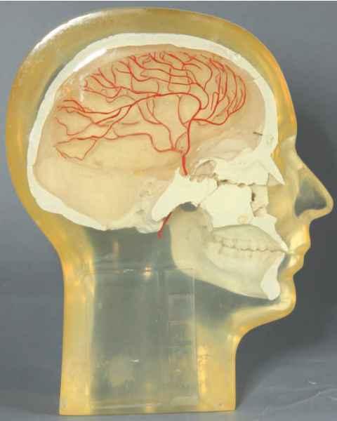 RSD Anthropomorphic Half Angiographic Head Phantom with Step Wedge
