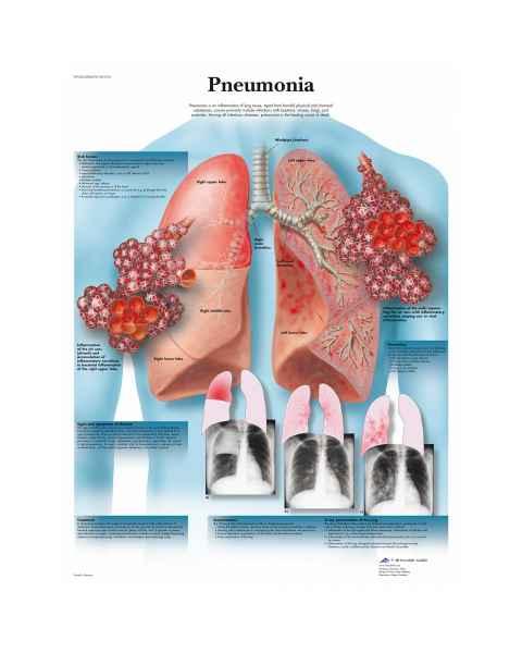 Pneumonia Chart