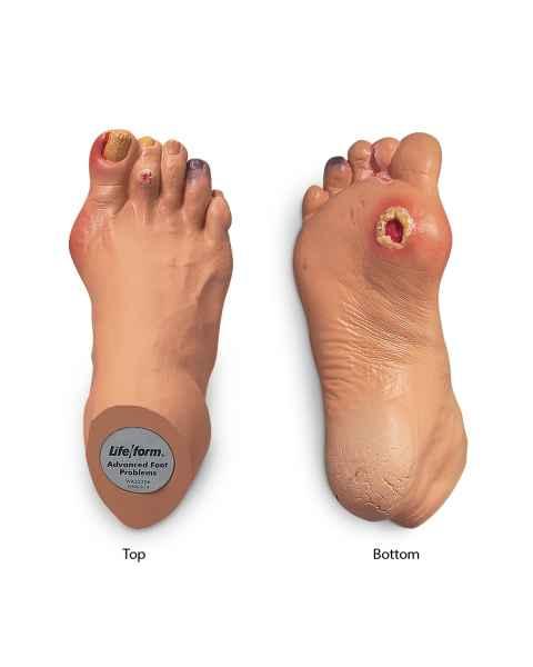 Life/form Advanced Foot Problems