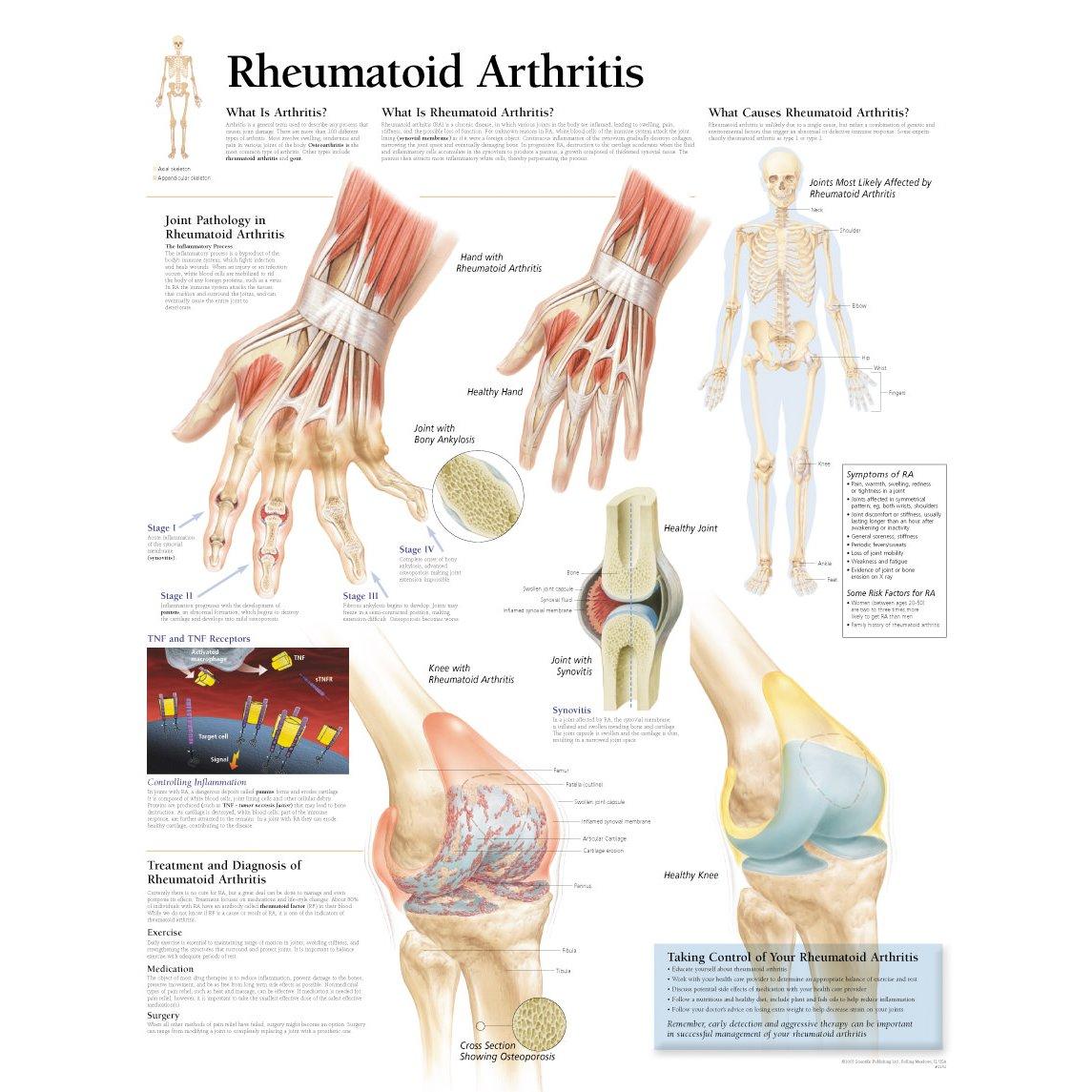 Scientific Publishing Rheumatoid Arthritis Chart