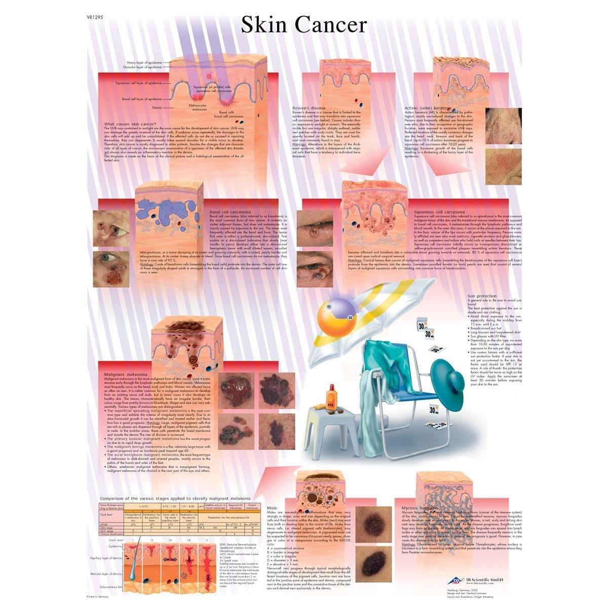3b Scientific Skin Cancer Chart
