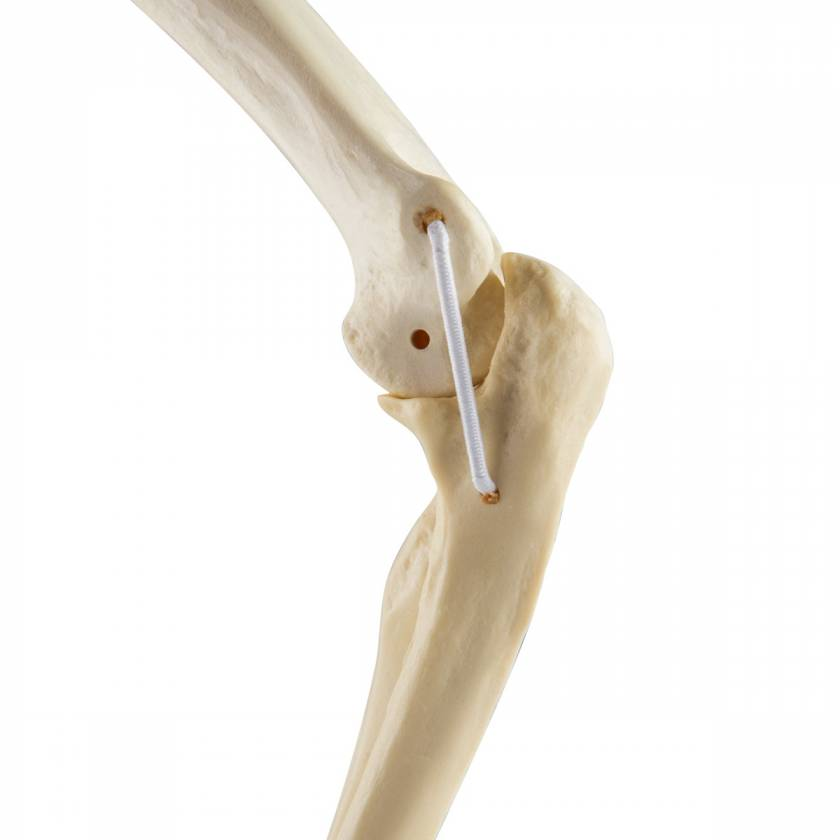 ORTHOBone Standard Elbow with Elastic Bands (Left)