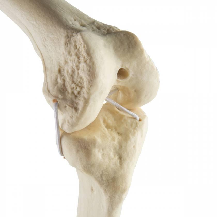 ORTHOBone Standard Knee (Right)
