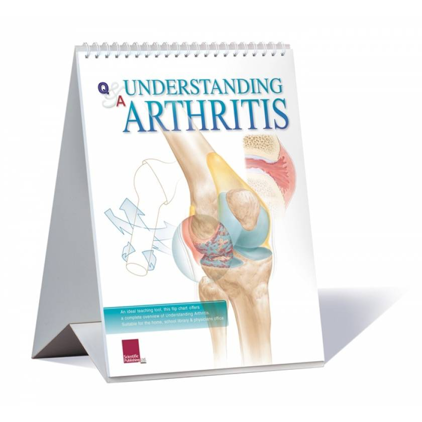 Understanding Arthritis  Anatomical Flip Chart