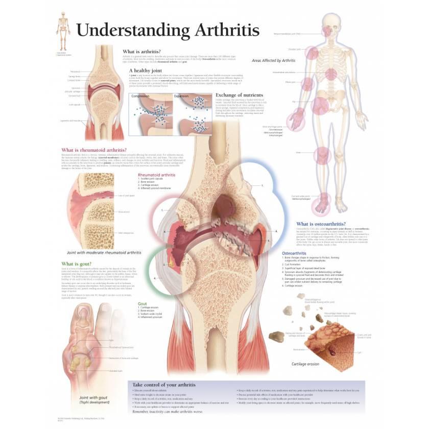 Understanding Arthritis Chart