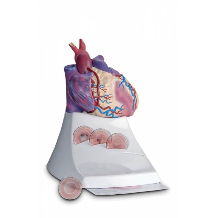 Life Size Diseased Heart Model