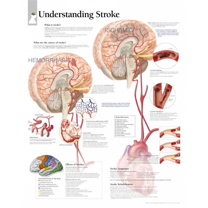 Understanding Stroke Chart