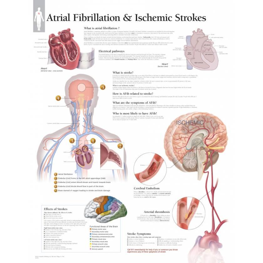 Atrial Fibrillation & Ischemic Strokes Chart