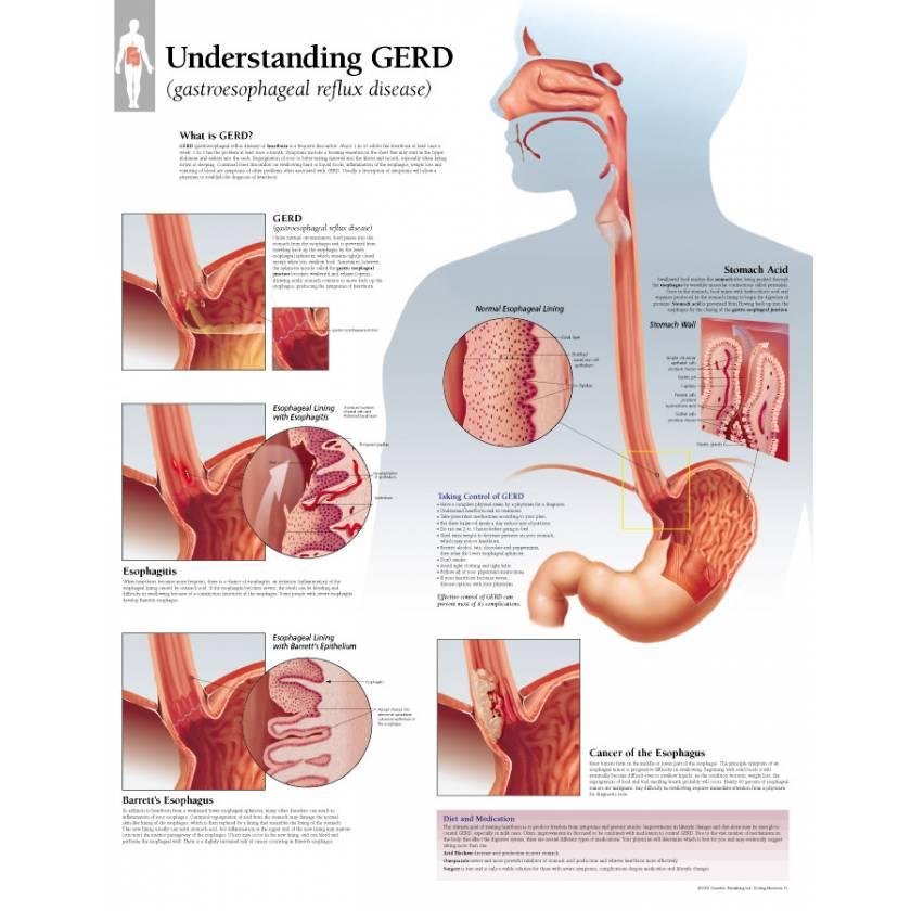 Understanding GERD (Gastroesophageal Reflux Disease) Chart