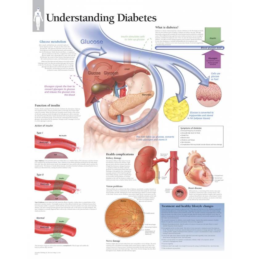 Understanding Diabetes Chart