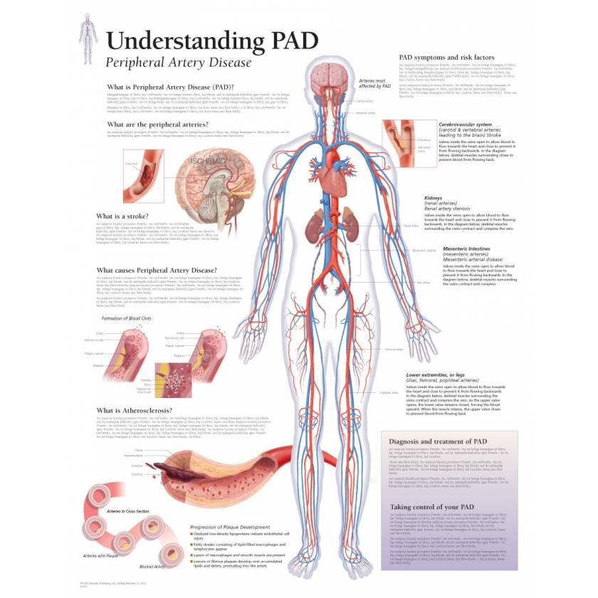 Understanding PAD (Peripheral Artery Disease) Chart