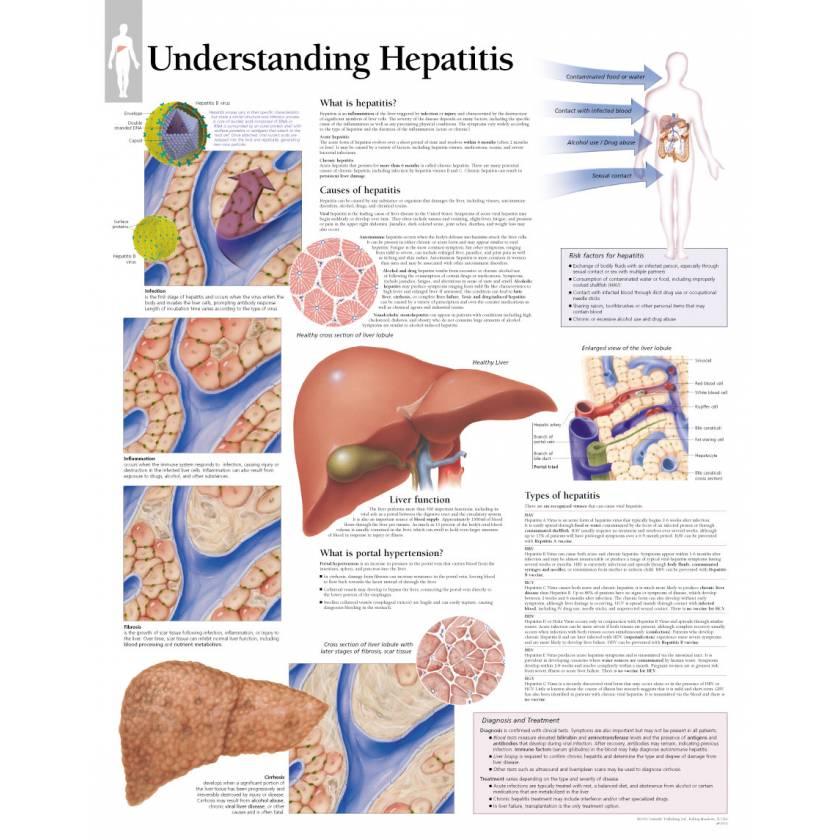 Understanding Hepatitis Chart