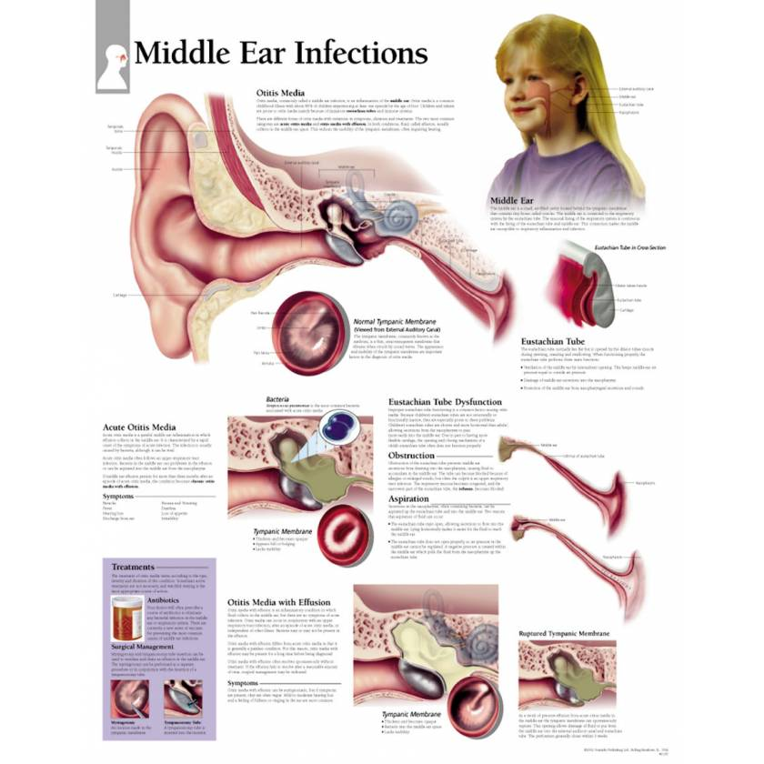 Middle Ear Infections Chart