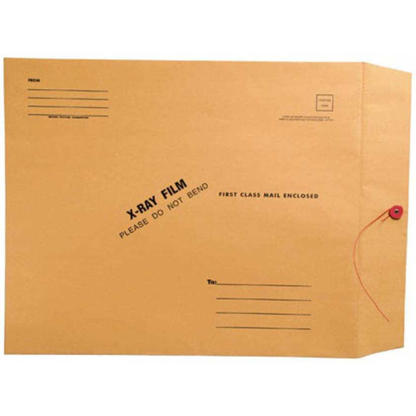 """15"""" x 18"""" Open End X-Ray Film Mailer - Brown Kraft Button & String Closure"""