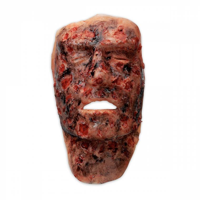 Life/form Moulage Wound - 3rd Degree Face Burn Simulator