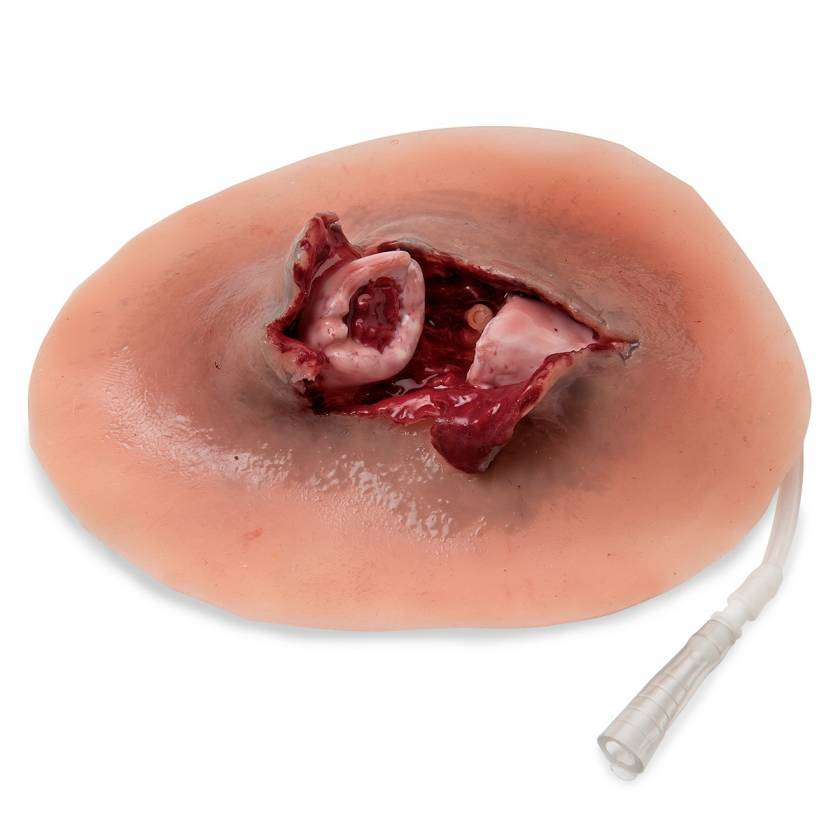 Life/form Moulage Wound - Open Clavicle Fracture Simulator