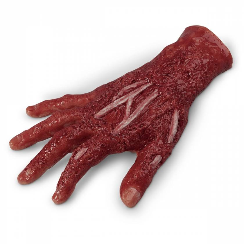 Life/form Moulage Wound - Chemical Burn, 4th Degree, Right Hand Simulator